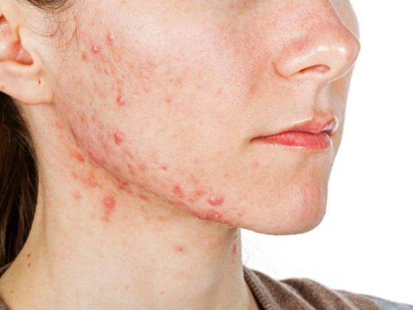 Quá trình breakout - đẩy mụn ẩn dưới da
