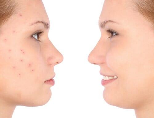 sản phẩm đẩy mụn ẩn tốt cho da