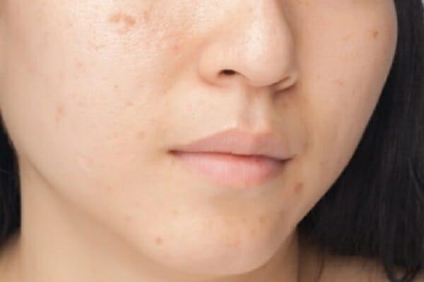 serum trị thâm dành cho da của bạn