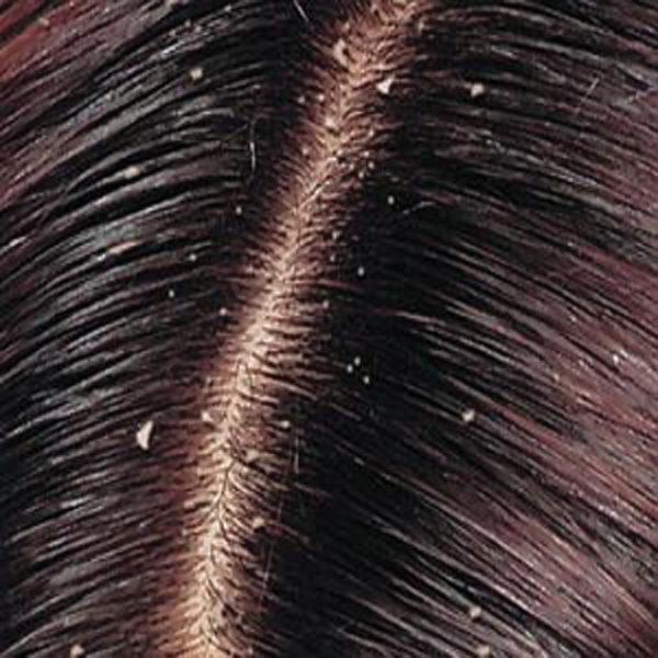 mái tóc bị gàu